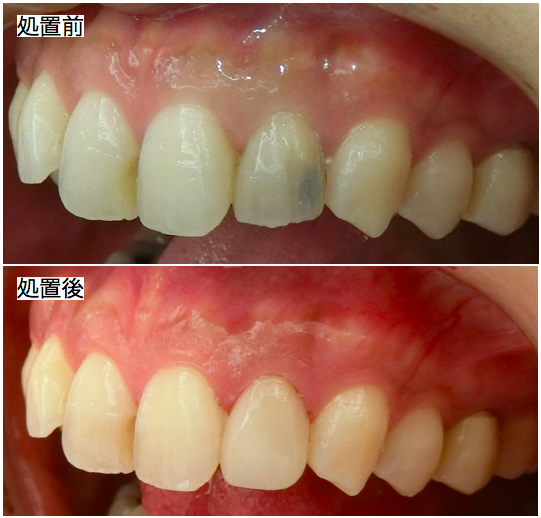 前歯部審美治療