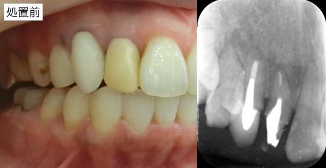 前歯部レントゲン