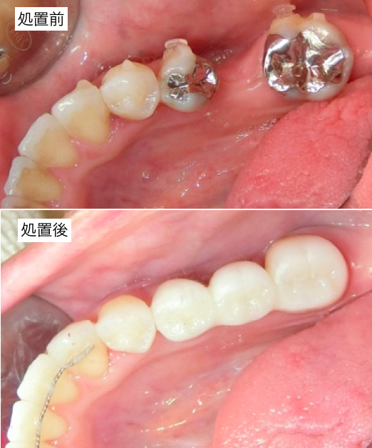 臼歯部審美治療