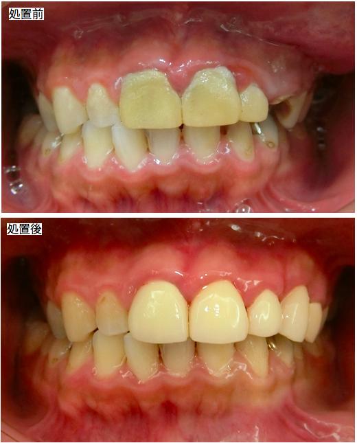 全額むし歯治療