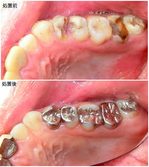 全体的なむし歯治療